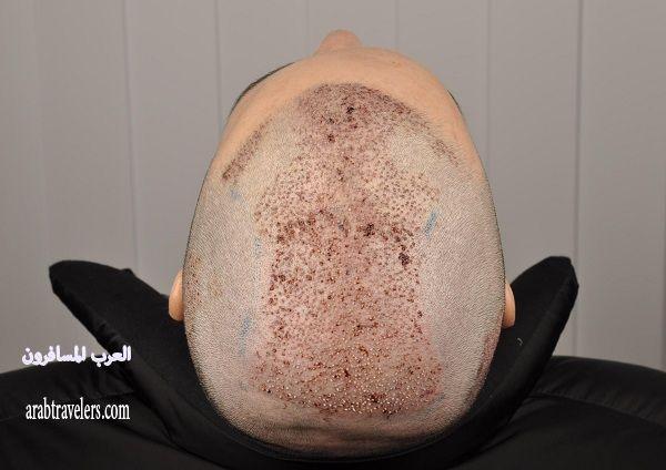 تجربتي في سفري الى تركيا واجراء عملية زراعة الشعر :d